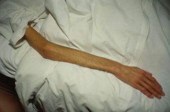 Le-bras-de-Gilles-Paris-1993-810x536